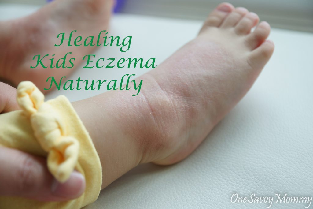 7 Steps in Healing Kids Eczema Naturally